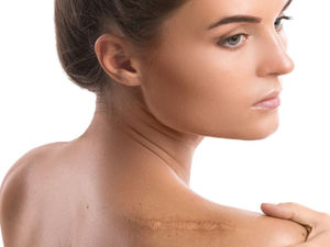 Patients and Doctors Often Disagree About Scars After Surgery