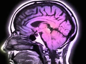 Research on Almost 2,000 Brains Brings Insight Into Mental Illness