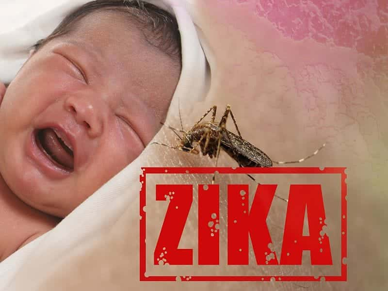 Scans, Ultrasound Spot Zika Brain Defects