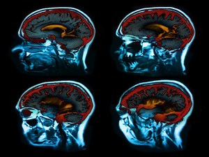 Study Finds Some Patients With A-Fib Have Hidden Brain Damage