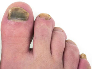 Toenail Fungus is Another Downside of Weight Gain