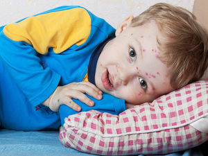 What to Do if Your Child Has Chickenpox