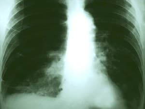 AI Takes Aim at Lung Cancer Screening