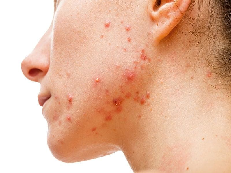 Curbing a Skin Oil Might Help Curb Acne, Study Suggests