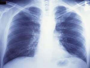 Injured Lungs Can Be Regenerated for Transplant: Study