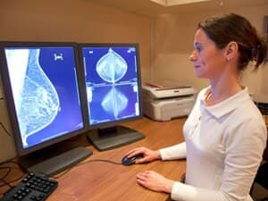 Is AI a New Weapon in Breast Cancer Detection?