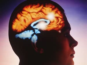 Mind-Reading Tech Could Bring 'Synthetic Speech' to Brain-Damaged Patients