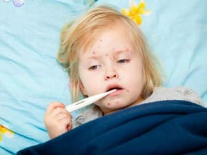 Parents, Here's How to Protect Your Child During Measles Outbreaks