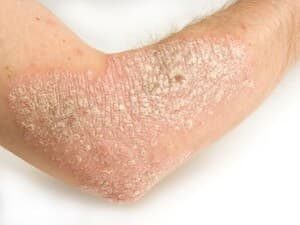Psoriasis, Mental Ills Can Go Hand in Hand