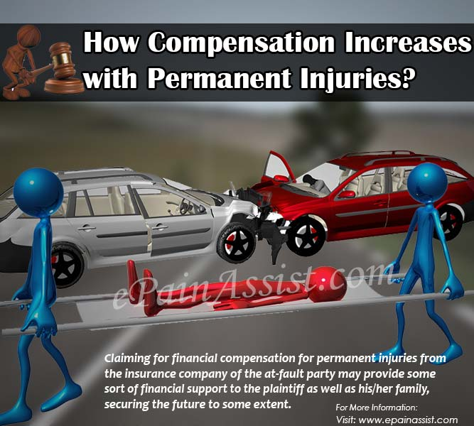 How Compensation Increases with Permanent Injuries?
