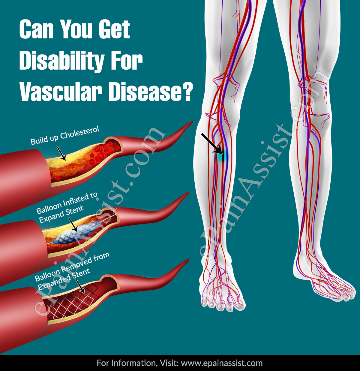 Can You Get Disability For Vascular Disease?