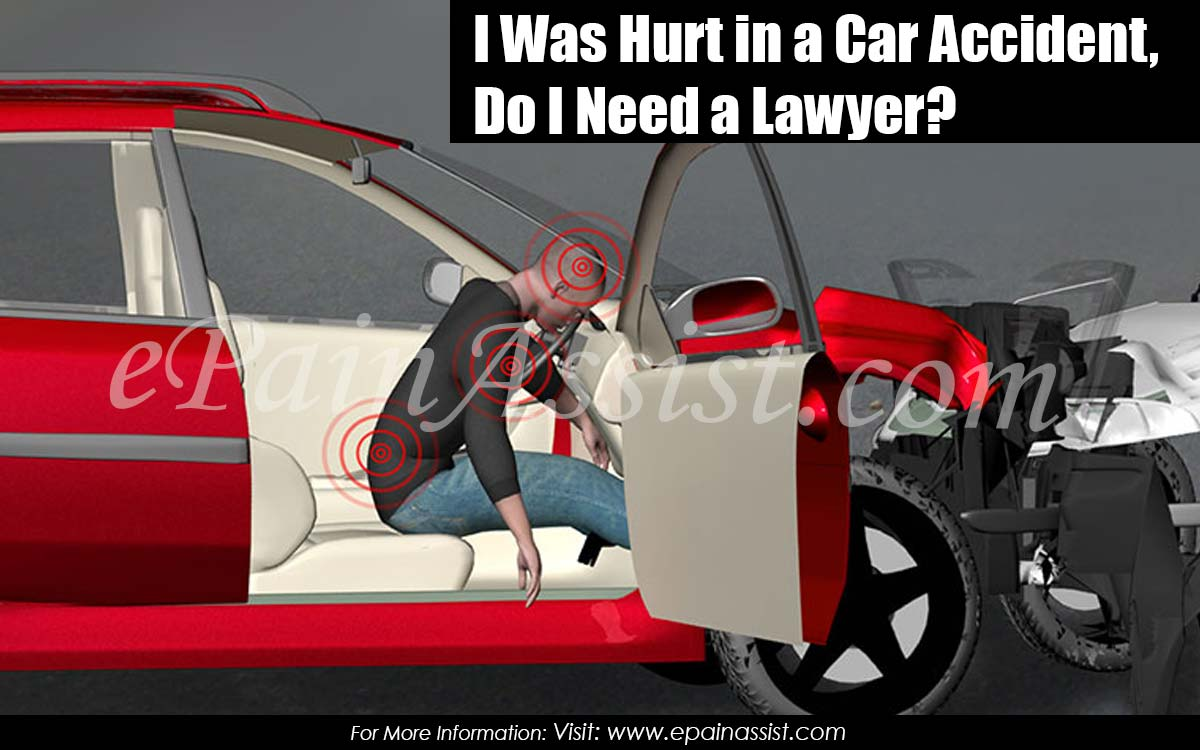 I Was Hurt in a Car Accident, Do I Need a Lawyer?