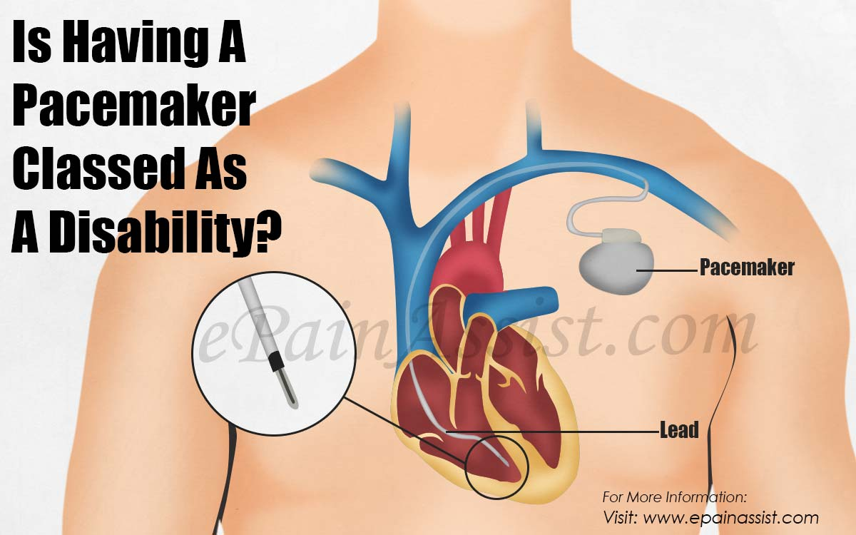 Is Having A Pacemaker Classed As A Disability?