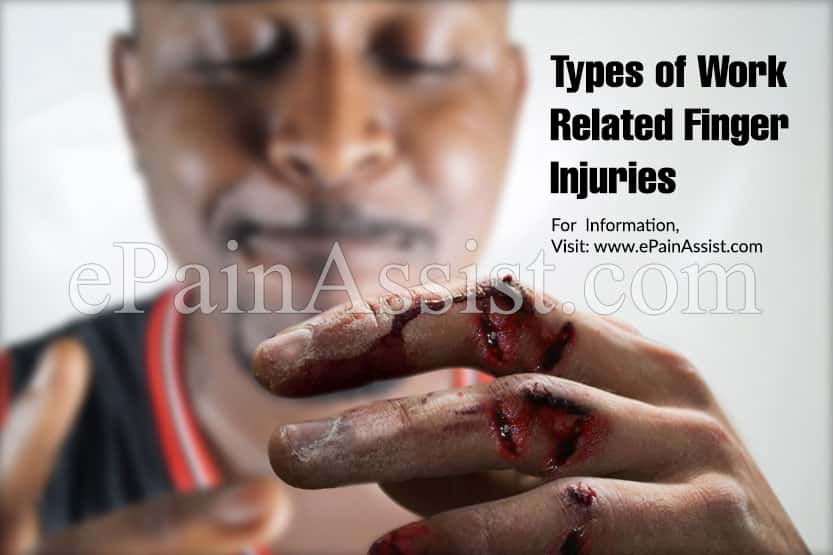 Types of Work Related Finger Injuries