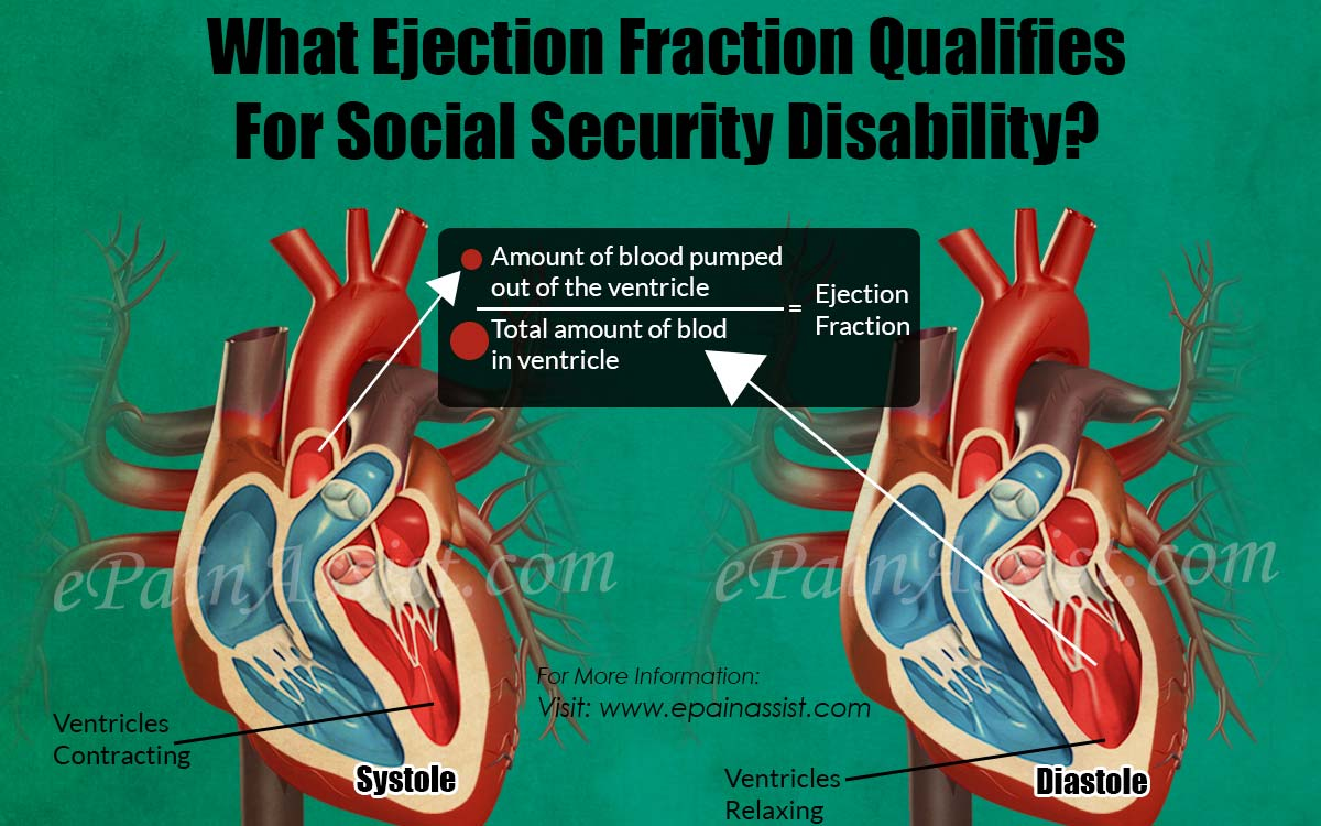 What Ejection Fraction Qualifies For Social Security Disability?