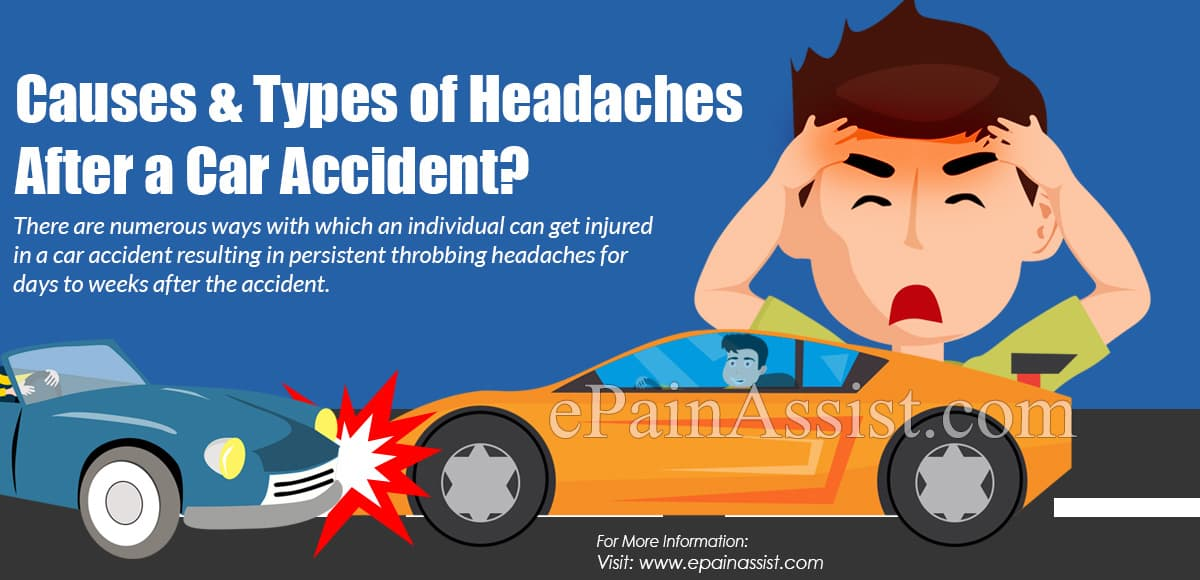 Causes & Types of Headaches After a Car Accident?
