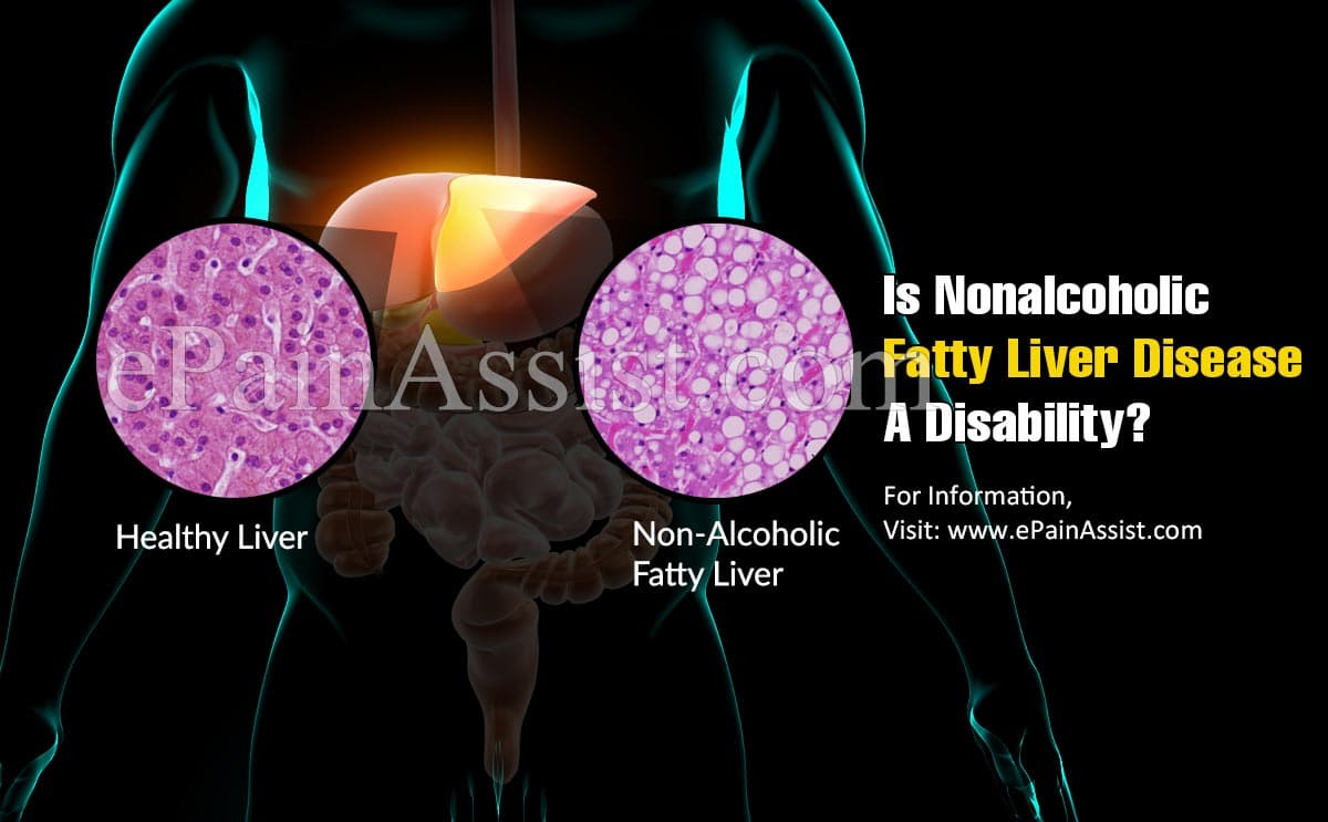 Is Nonalcoholic Fatty Liver Disease A Disability?