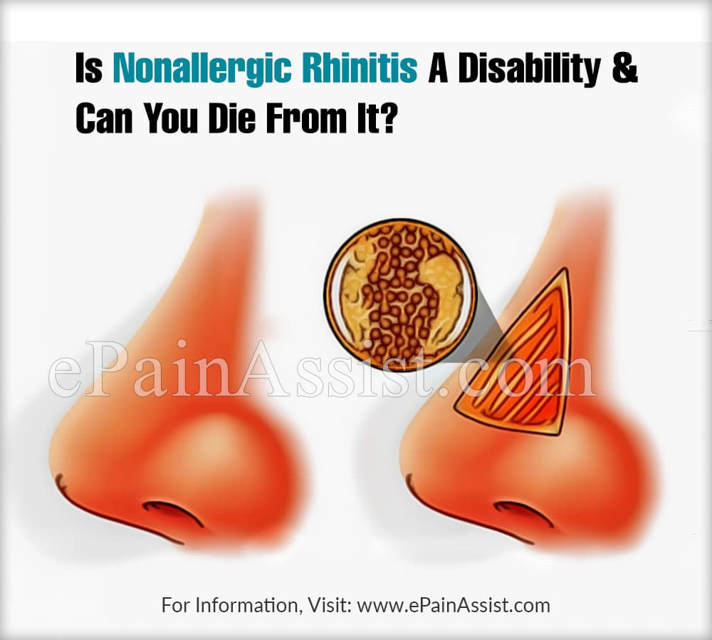 Is Nonallergic Rhinitis A Disability & Can You Die From It?