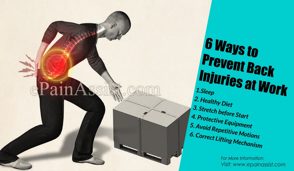 6 Ways to Prevent Back Injuries at Work