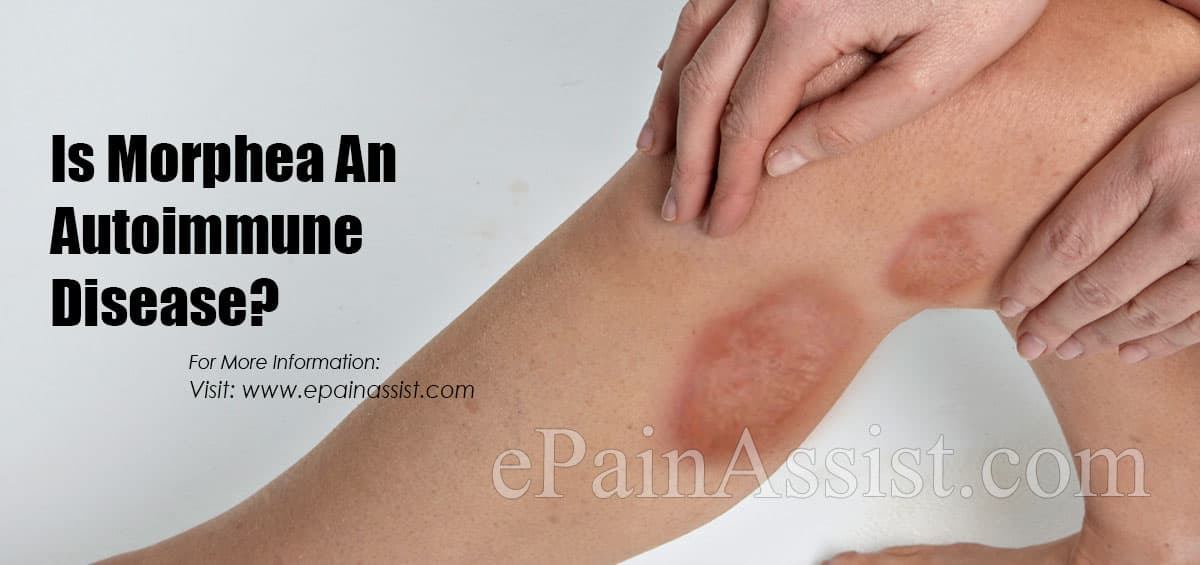 Is Morphea An Autoimmune Disease?
