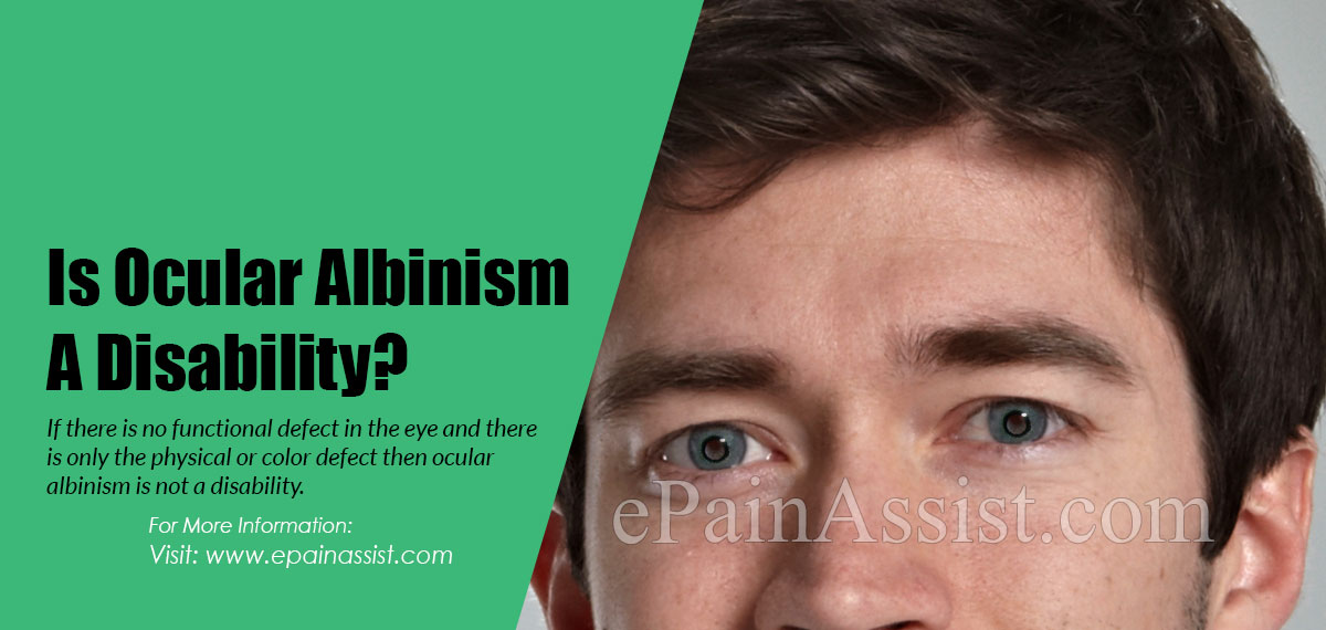 Is Ocular Albinism A Disability?