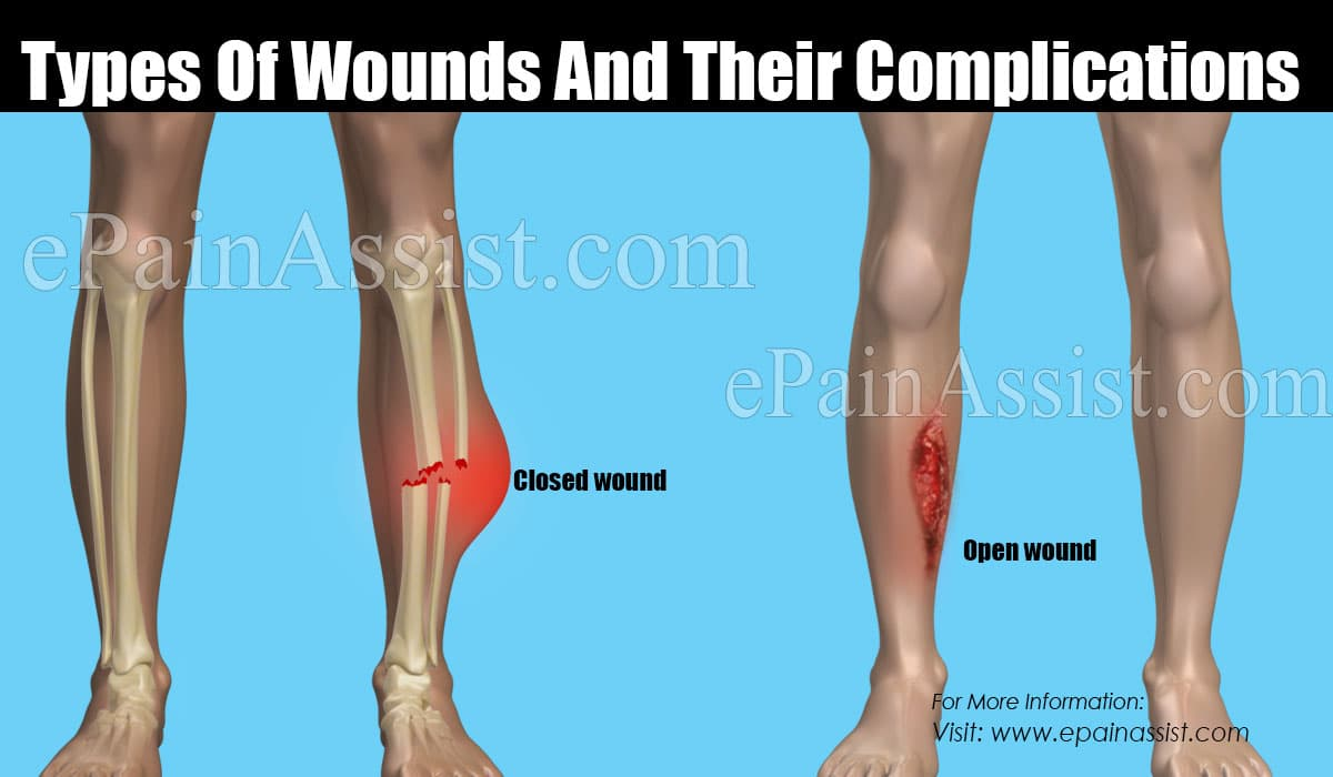 Types Of Wounds And Their Complications