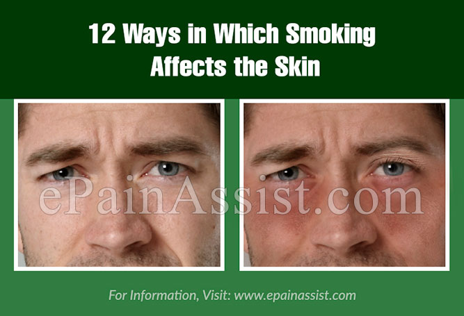 12 Ways in Which Smoking Affects the Skin