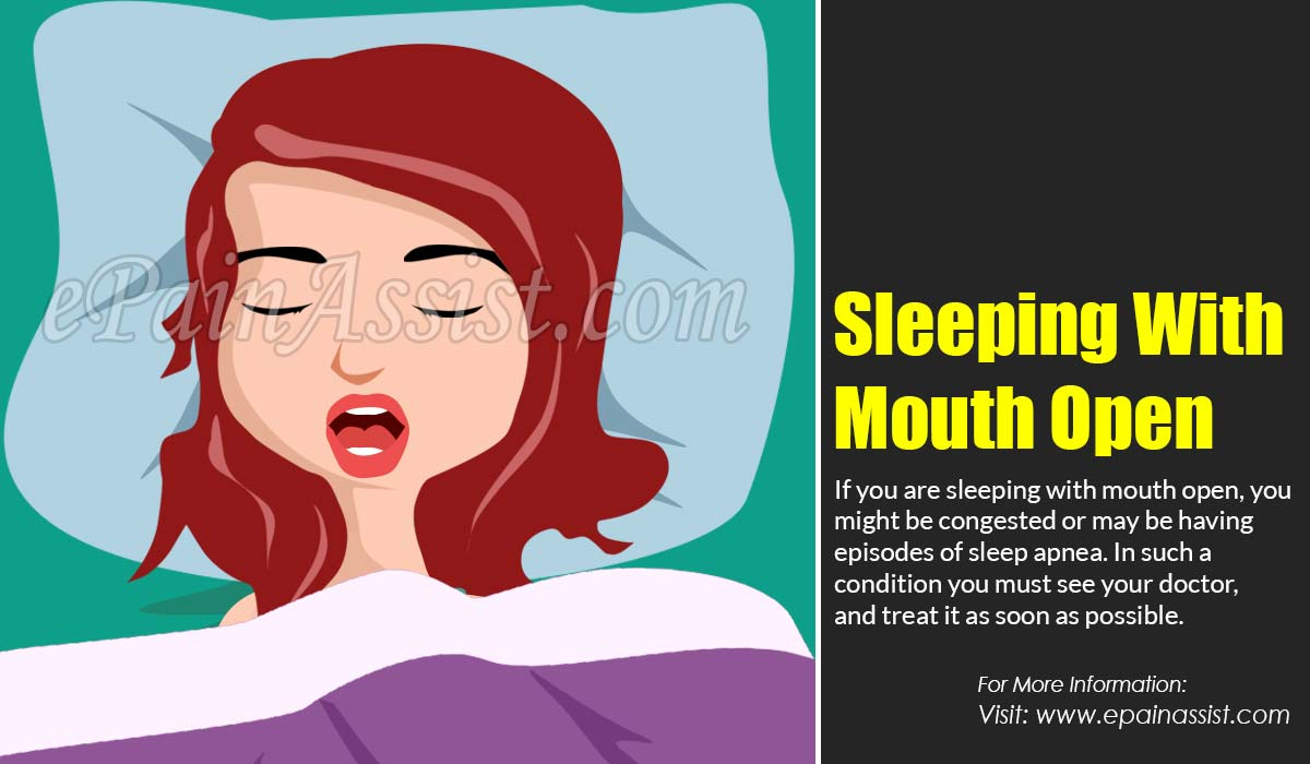 Sleeping With Mouth Open