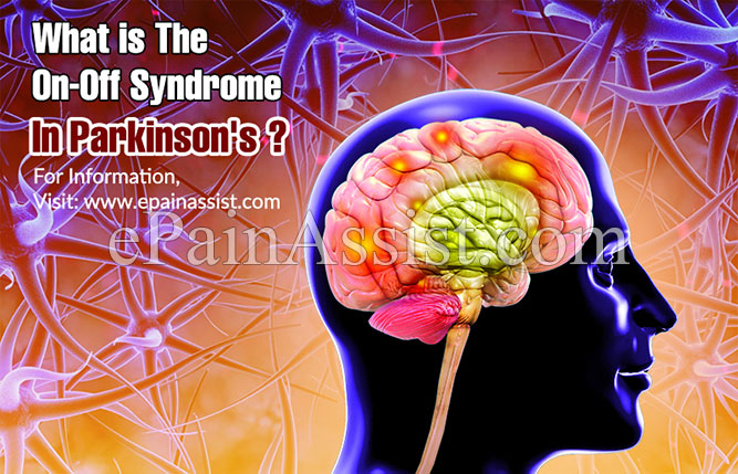 What is The On-Off Syndrome In Parkinson's?