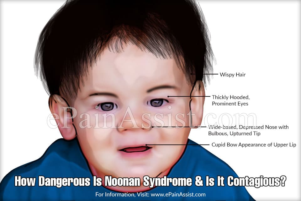 How Dangerous Is Noonan Syndrome?