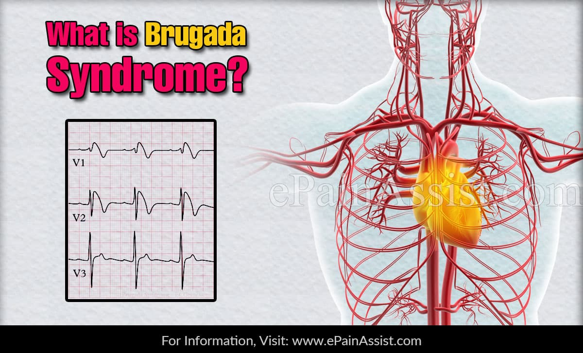 What is a Brugada Syndrome?