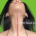 Pills Getting Stuck In Throat Quiz