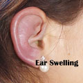 Swollen Ear Canal Quiz