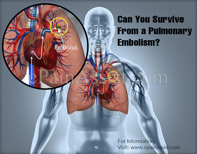 Can You Survive From a Pulmonary Embolism?
