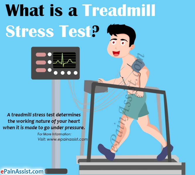 What is a Treadmill Stress Test?