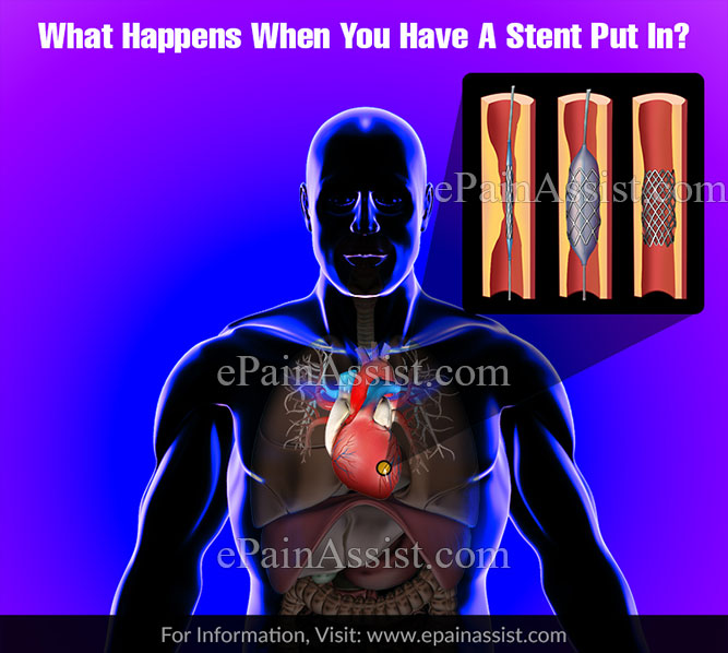What Happens When You Have A Stent Put In?
