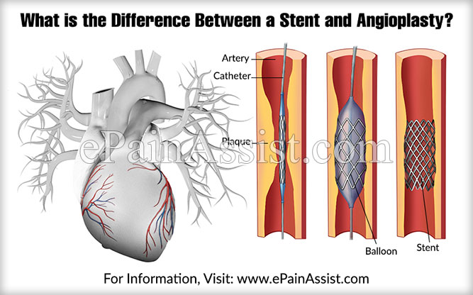 What is the Difference Between a Stent and Angioplasty?