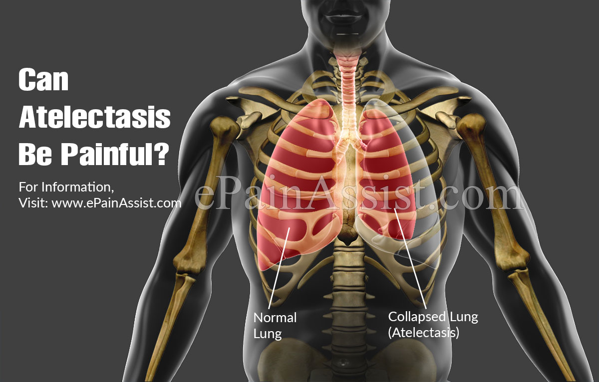 Can Atelectasis Be Painful?