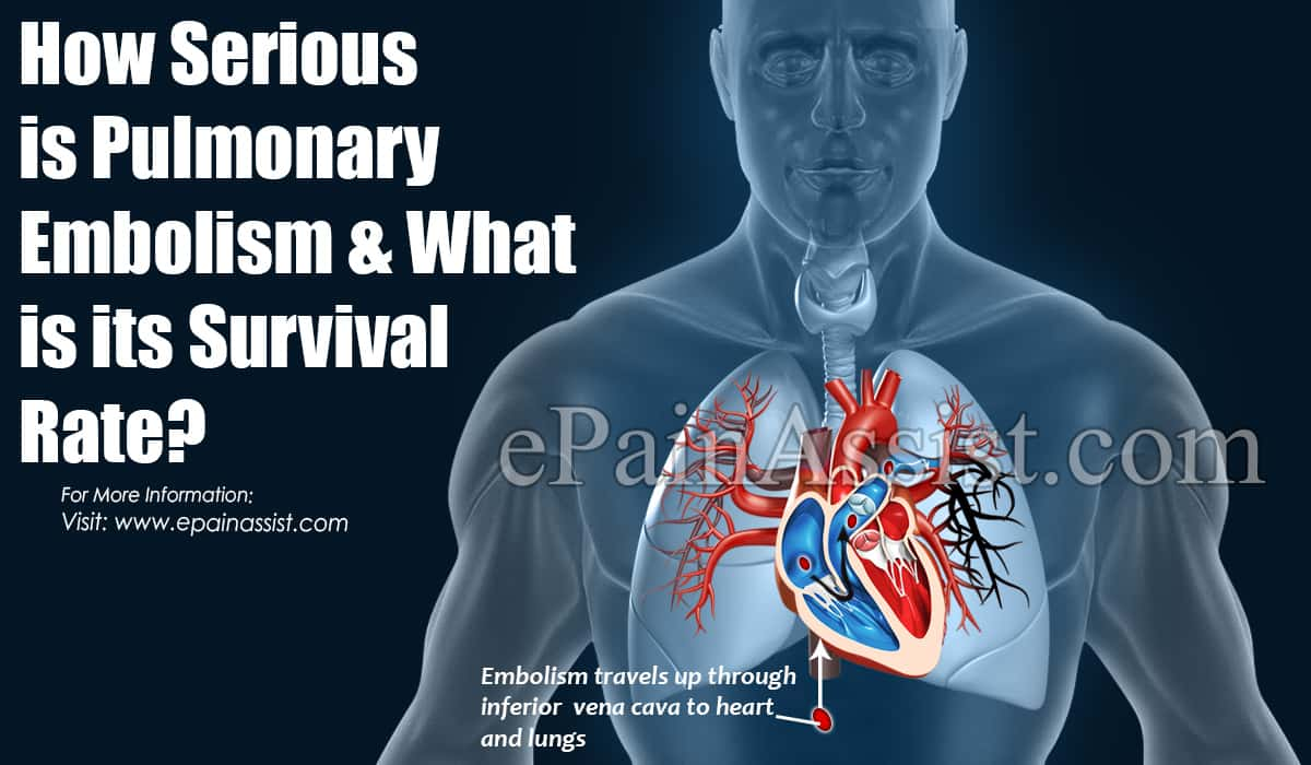 How Serious is Pulmonary Embolism & What is its Survival Rate?
