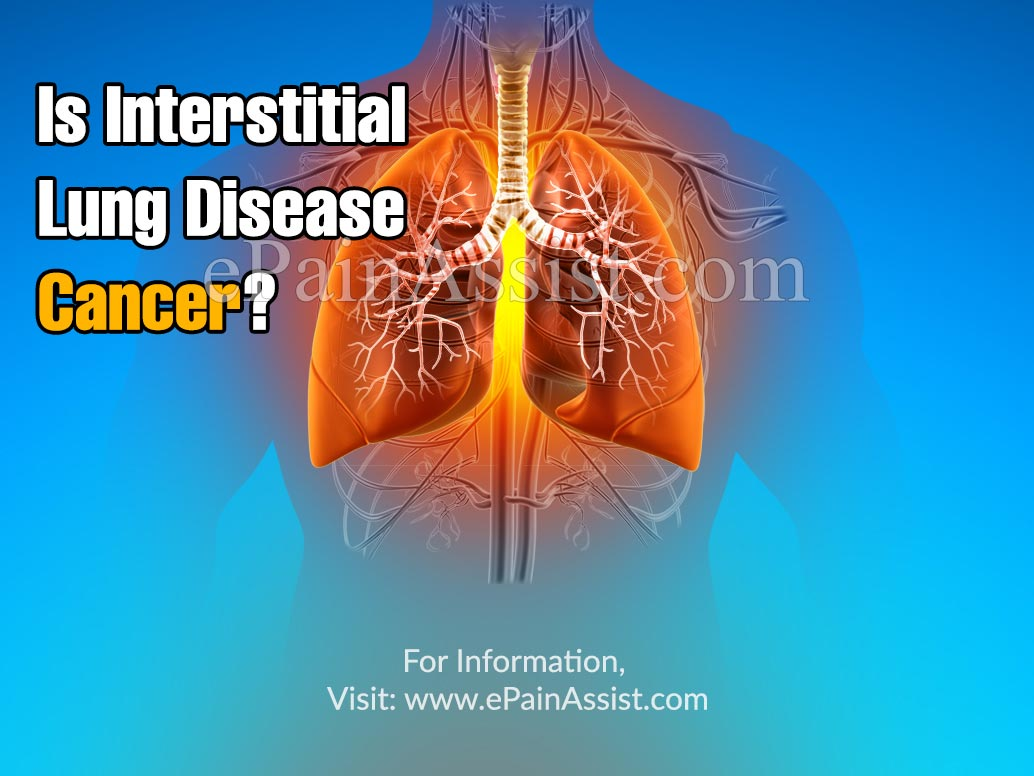 Is Interstitial Lung Disease Cancer?