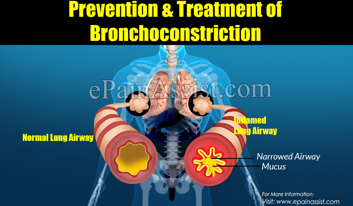 Prevention, Treatment & Complications of Bronchoconstriction