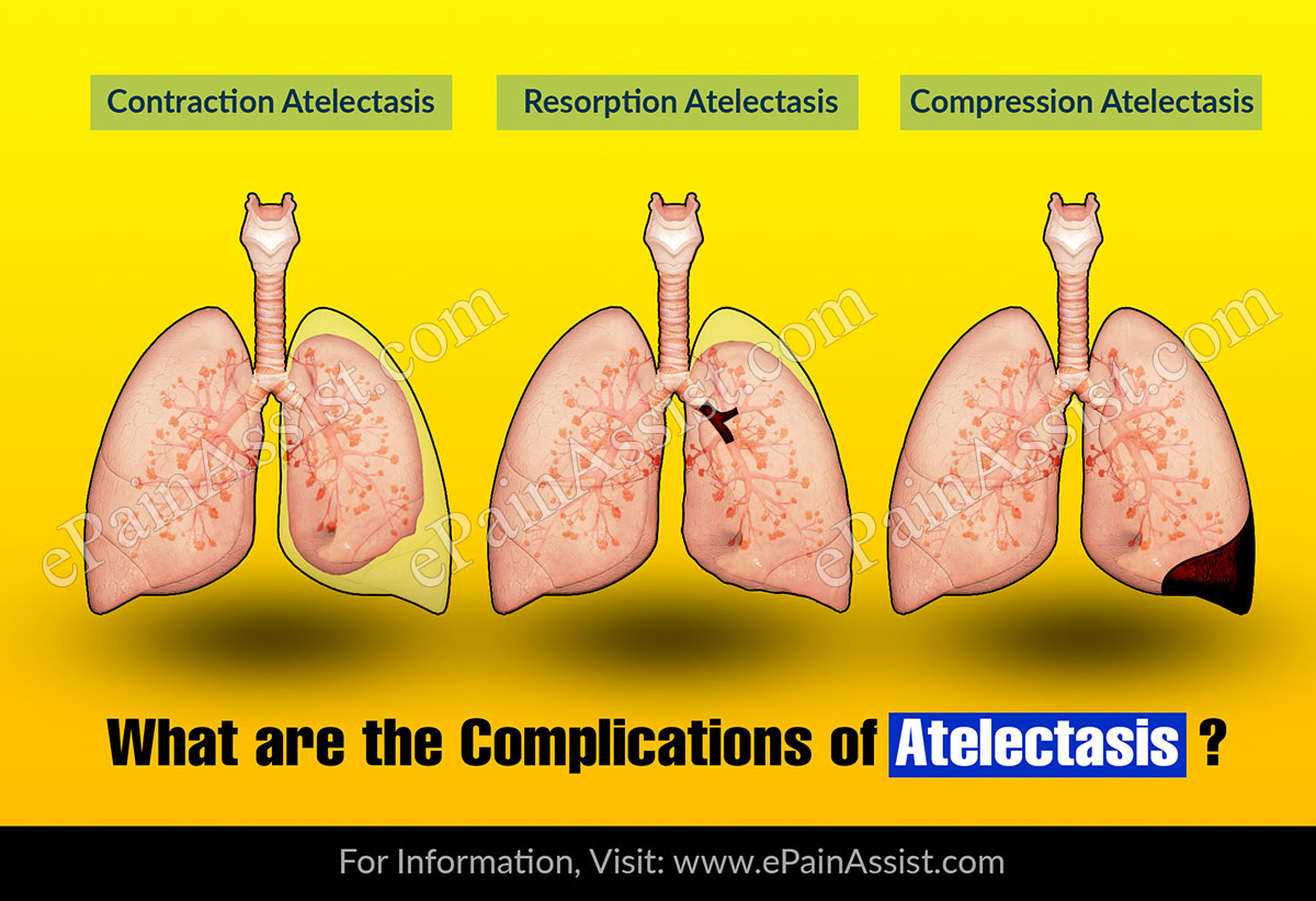 What Are The Complications Of Atelectasis?