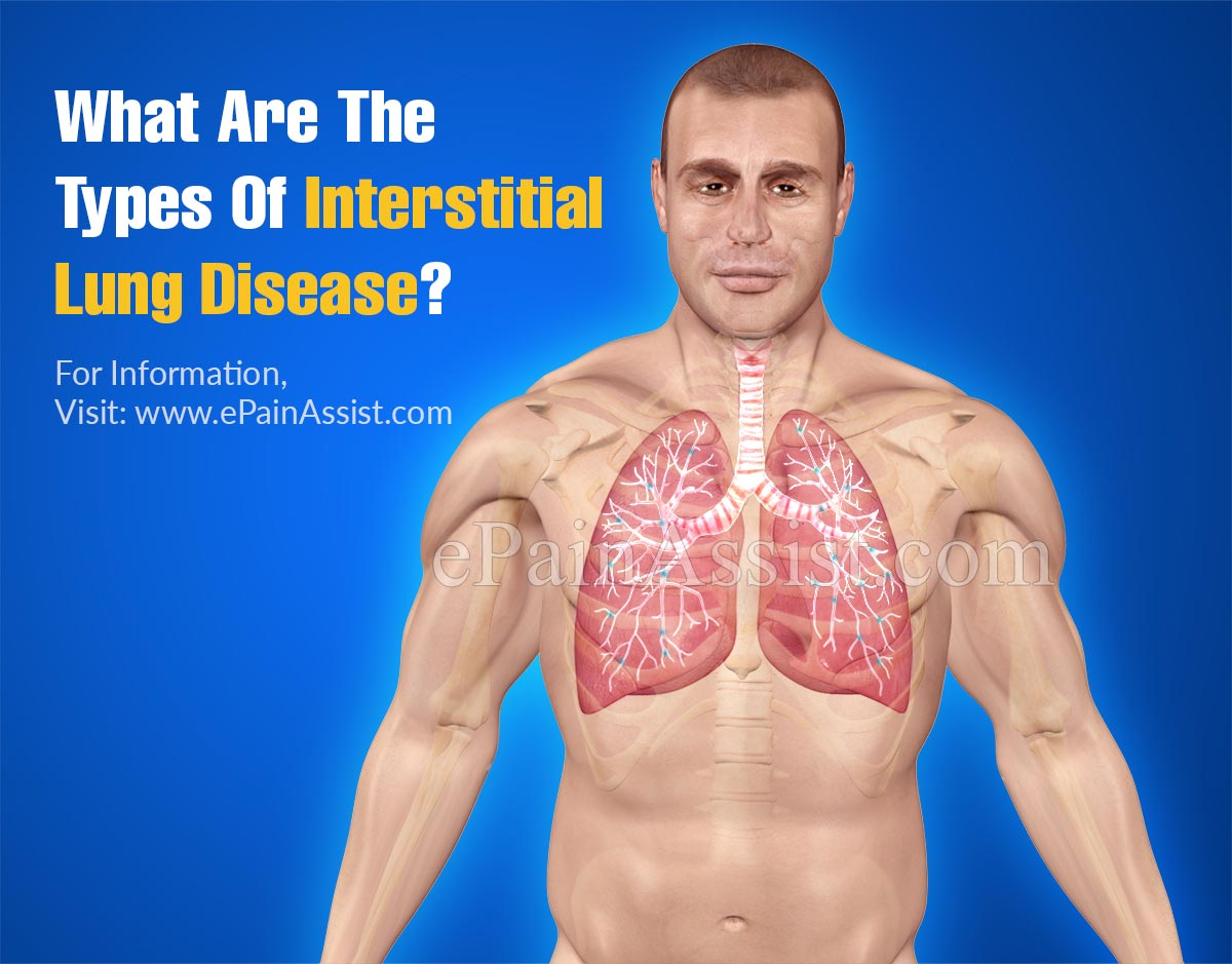 What Are The Types Of Interstitial Lung Disease?