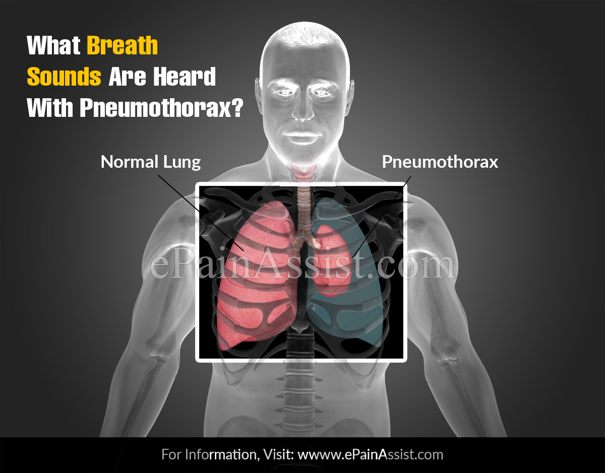 What Breath Sounds Are Heard With Pneumothorax?