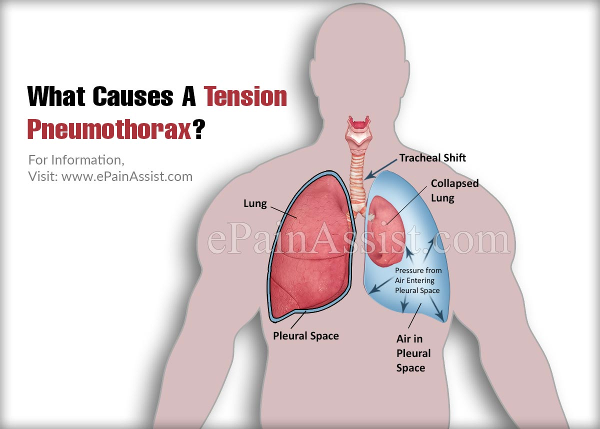 What Causes A Tension Pneumothorax?