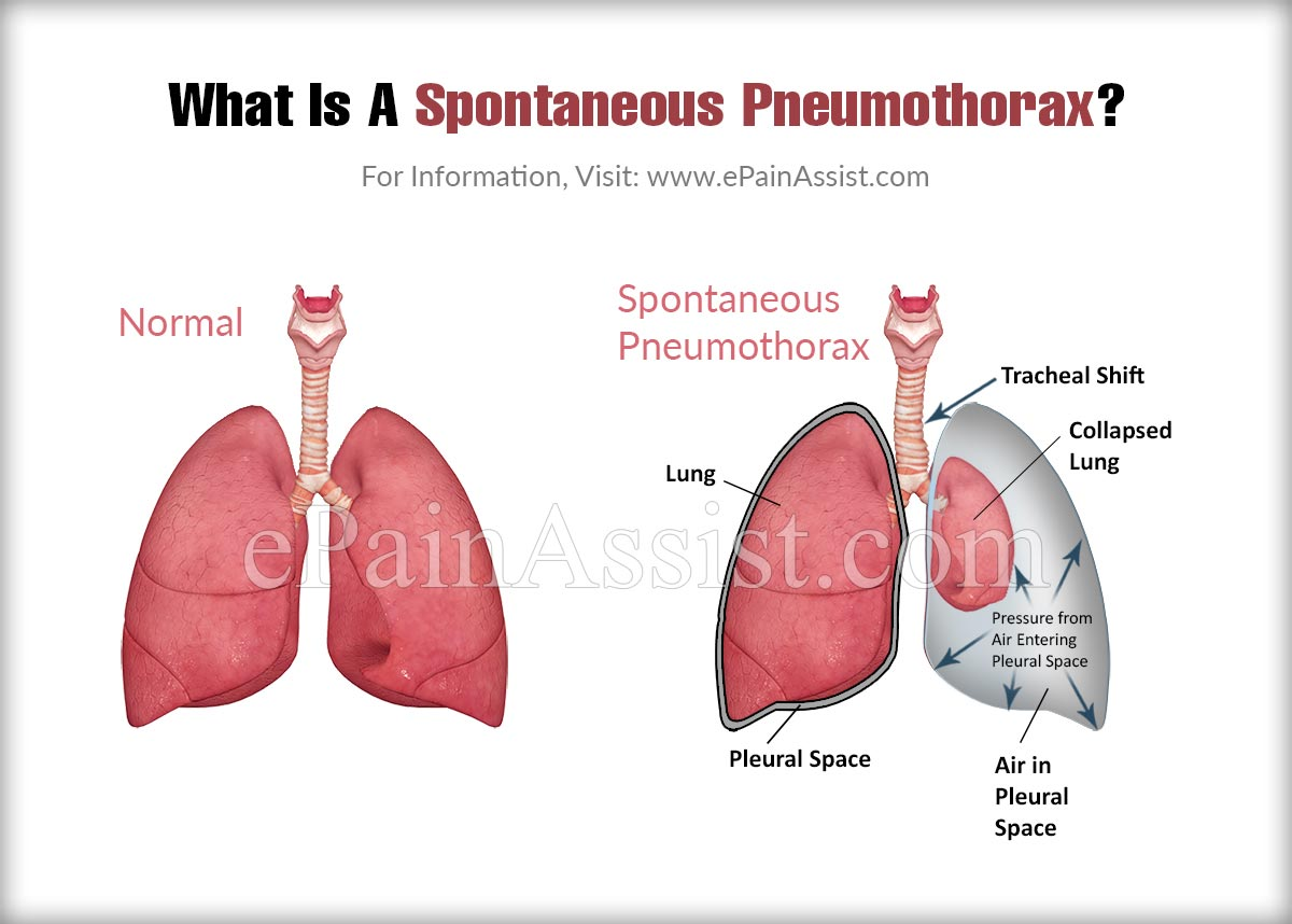What Is A Spontaneous Pneumothorax?
