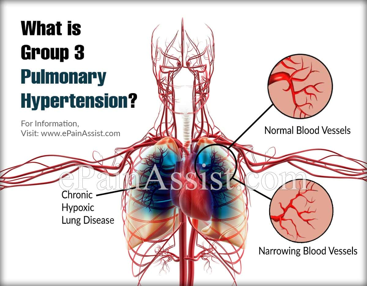 What is Group 3 Pulmonary Hypertension?