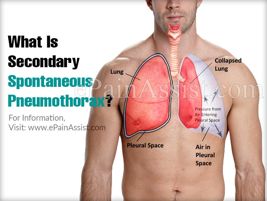 What Is Secondary Spontaneous Pneumothorax?
