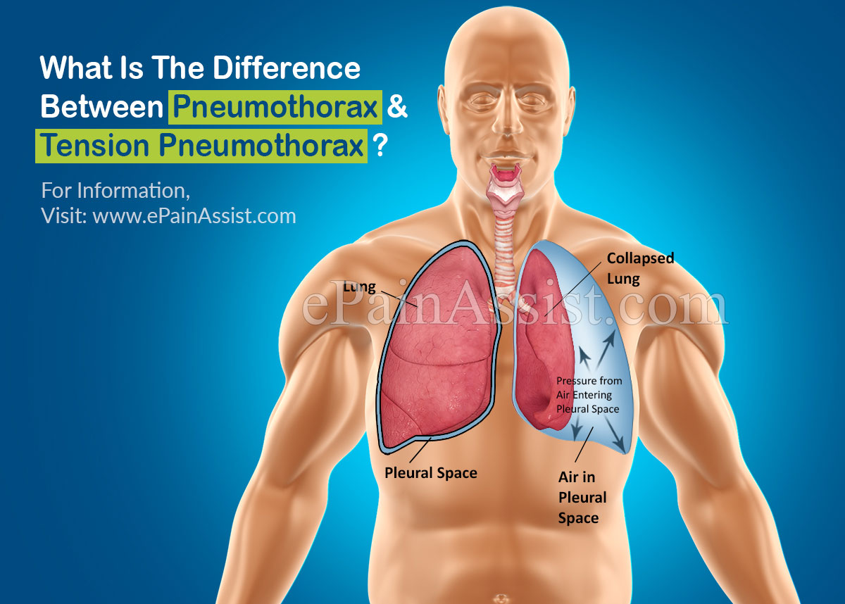What Is The Difference Between Pneumothorax And Tension Pneumothorax?