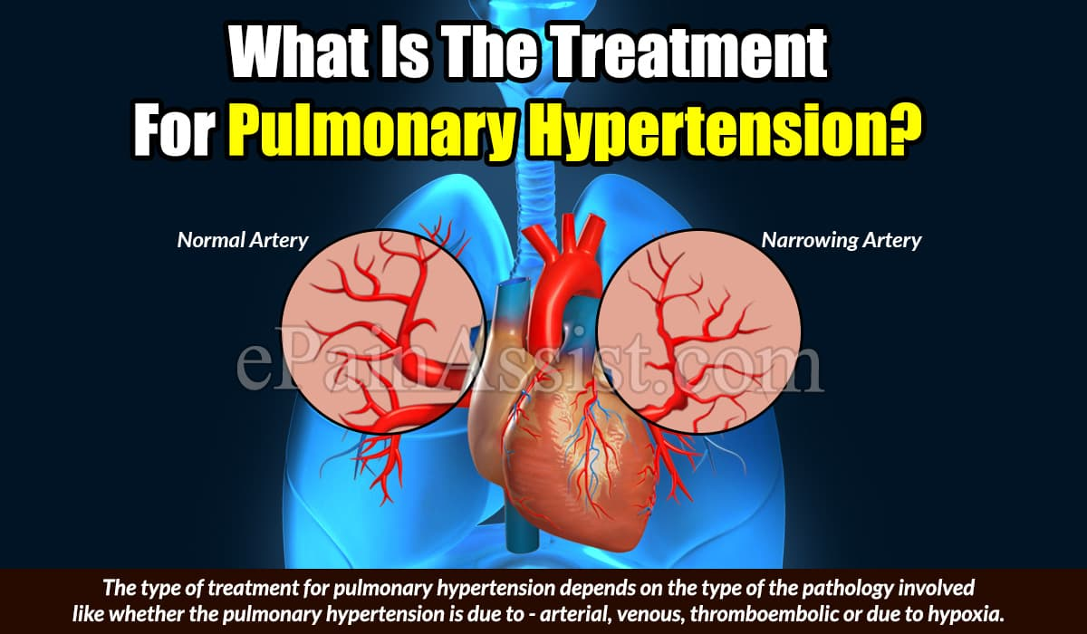 What Is The Treatment For Pulmonary Hypertension?